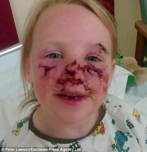 该女孩遭邻家宠物犬袭击,造成脸上多处受伤。