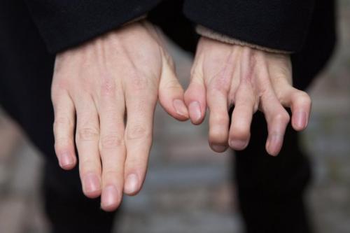 男子手指畸形用脚趾移植取代 手术成功(组图)