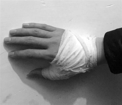 陈老师在格斗中受伤。