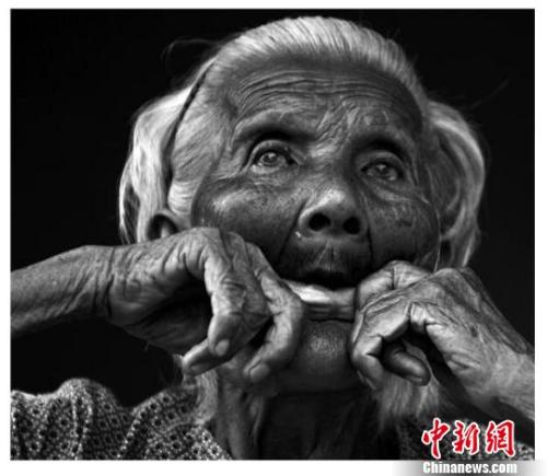 """林爱兰,90岁,现居海南临高县南宝镇养老院,是今朝已知的、全部亚洲惟逐个名被逼迫为""""慰安妇""""的抗日密斯兵幸存者。 郭一江 摄"""
