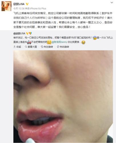 港星陈浩民吃面包遭烫伤急叫救护车 被批浪费公共资源