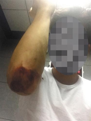 被警方抓捕时,不知情的黄诚停止了对抗,招致臂膀肘擦伤。