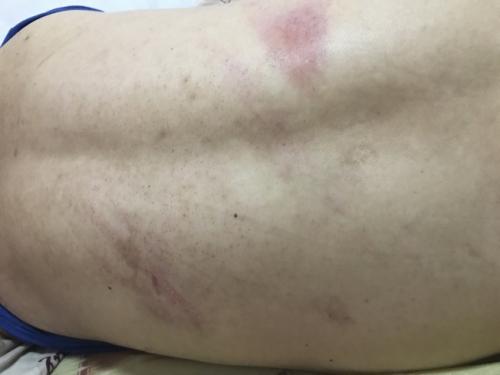 莫名被殴打,江贤锋浑身是伤。(美国《世界日报》/记者黄伊奕 摄)