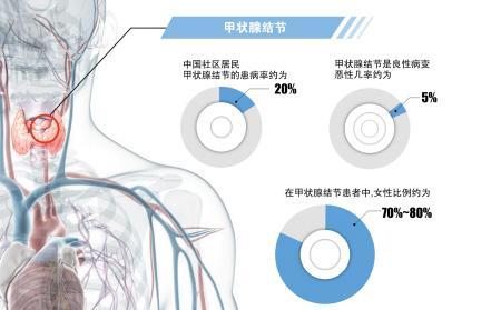 每5人中就有1人患甲状腺结节 该病好发于中年