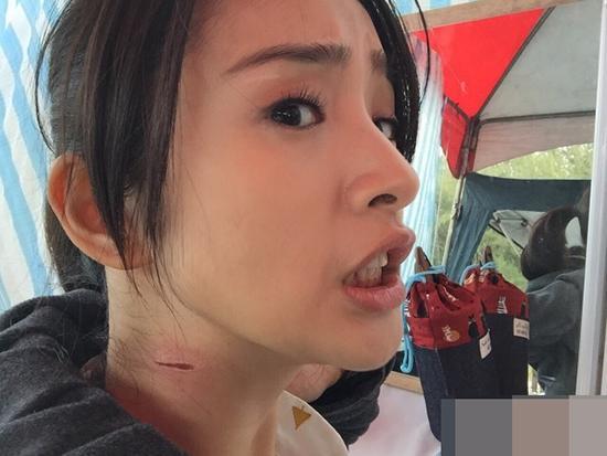林依晨新婚不久拚命拍戏 颈部被割伤现长疤
