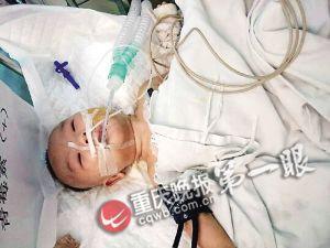 80天大男婴面临窒息 的哥为救人一路双闪送医