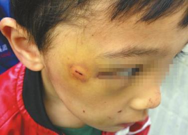 孩子眼角附近的伤口肿了起来。