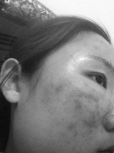 脸上用化妆品过敏起痘 手掌发红发痒出汗