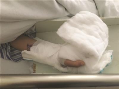 男孩手指被洗衣机绞断 断指手术成活谜团待解(图)