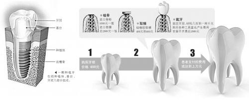 昂贵的牙齿:成本两三千 收费上万