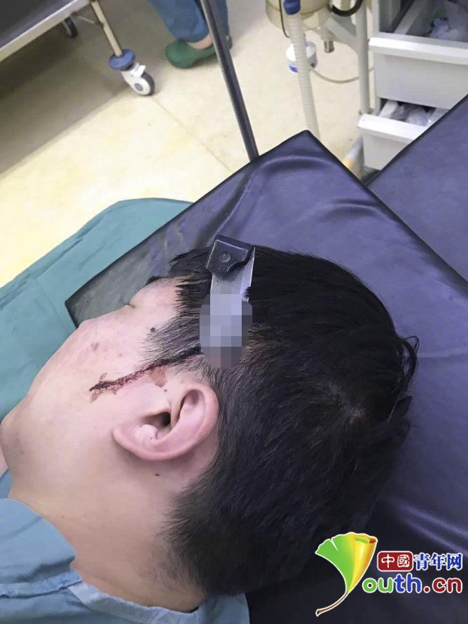 山东一骨折患者麻醉成金沙娱乐网上全博网功后刀插医生头部并拳打脚踢(图)