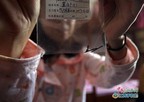 """女子体内""""藏""""缝衣针23年 手术取出已锈"""
