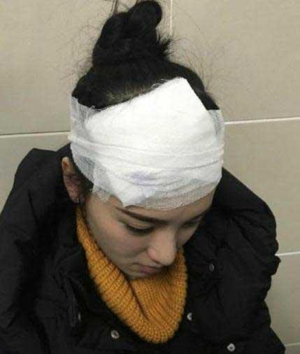 黄灿灿片场头部被砸伤 坚持保守治疗带伤工作