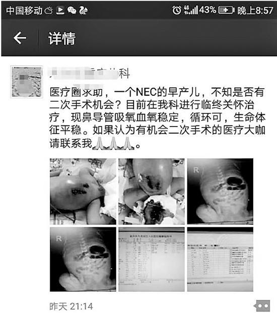 早产儿病危去接受临终关怀 重庆杭州18小时接力抢救