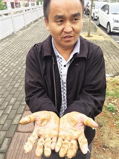 农民工刷完油漆双手烂了 房主:他坚持不戴手套无锡24券团购网