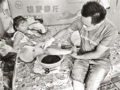 女儿烫伤8年未愈父亲求助:想靠自己多接活多挣钱