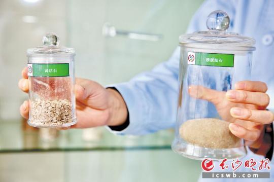图中分别为开放手术(右)和碎石取石术采出的泌尿系结石标本。 长沙晚报通讯员 粟青梅 摄