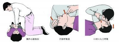 猝死并非猝不及上海助孕防
