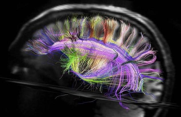 荷兰科学家发明新系统 可阅读人类思维