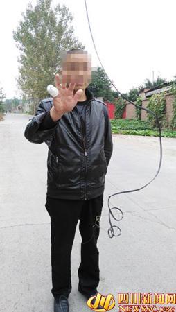 摩托男路上遇悬空线缆开过50米发现手指少一截(图)