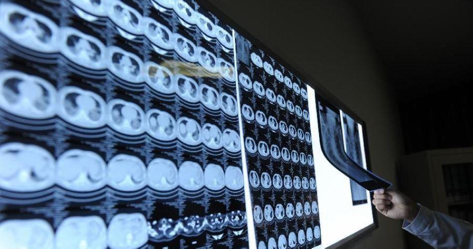 直击人感染H7N9禽流感患者治疗过程