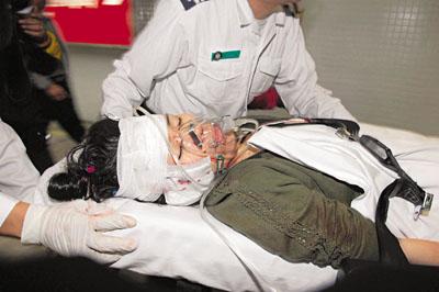 同居男友刀砍 香港单亲妈妈重伤遭毁容(图)