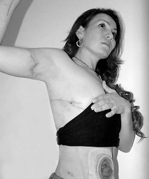 墨西哥美女逃脱凶残暗展示身体伤痕图