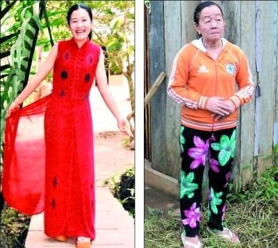 乱吃药引皮肤怪病越南26岁美女变70岁老太(图)