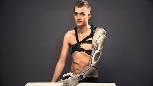 """用胳膊充电?装上仿生手臂他成了""""半机械人"""""""
