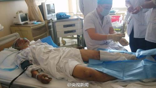 天津首位获救消防员恢复良好 伤势逐步好转