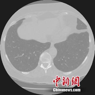 阿里云启动天池医疗AI大赛挑战早期肺癌诊断