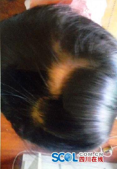 3岁女生幼儿园内7天2次受伤啪啪被扯掉(图)头发动怎么女童图片