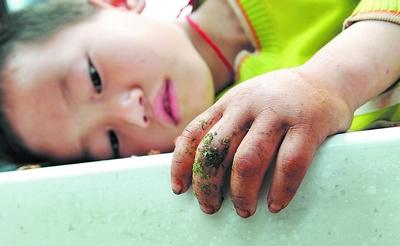 红网); 7岁男孩被眼镜蛇咬伤 救命血清遭; 蛇咬伤急救法