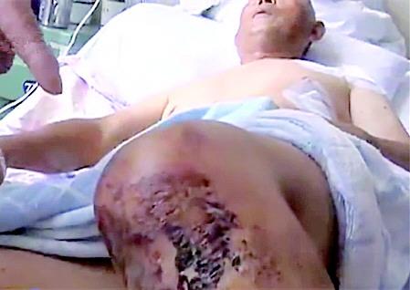 为护村民血汗钱 69岁信用社代办员被砍十六七刀
