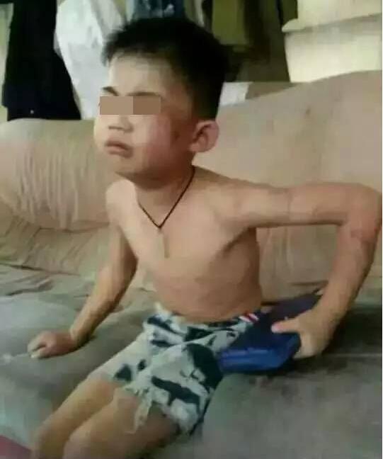 商丘6岁男童遭母亲男友家暴 施暴者获刑两年8个月