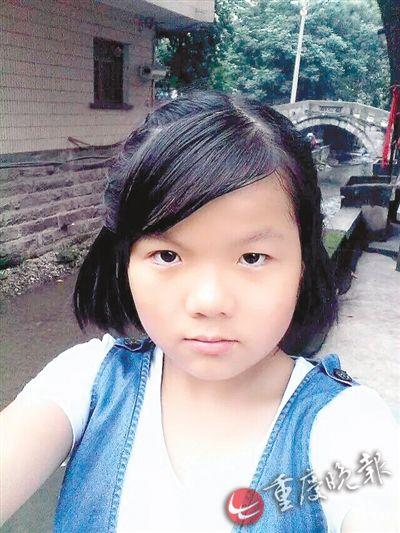 14岁少女为救父亲返回火场全身烧伤面积达79%(图)