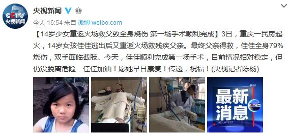 14岁少女重返火场救父致全身烧伤第一场手术顺利完成