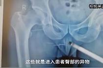 大叔臀部刺痛十余年 医生取出多枚绣花针