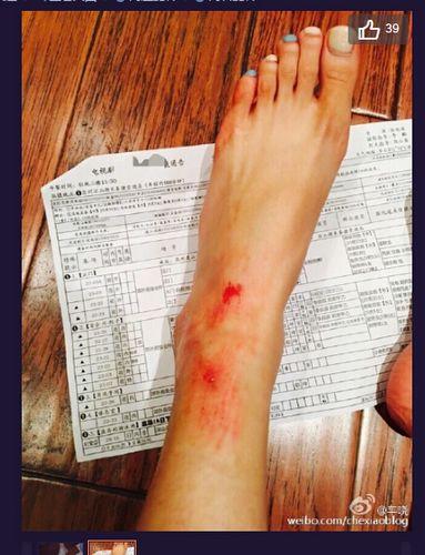 [明星爆料]车晓滚下楼梯腿、脚均受伤 受伤照曝光(图)